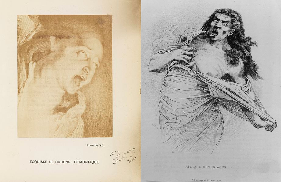 An illustration of a fit of Genevieve's (right) next to an illustration by Rubens
